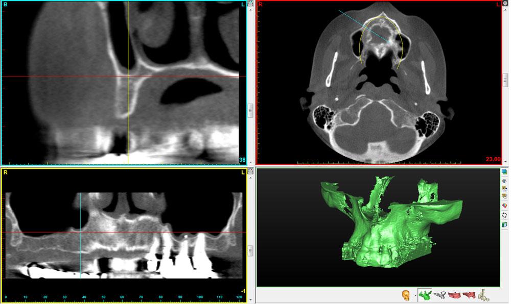 Zahnarzt Höchstadt - 3D-Röntgenaufnahme